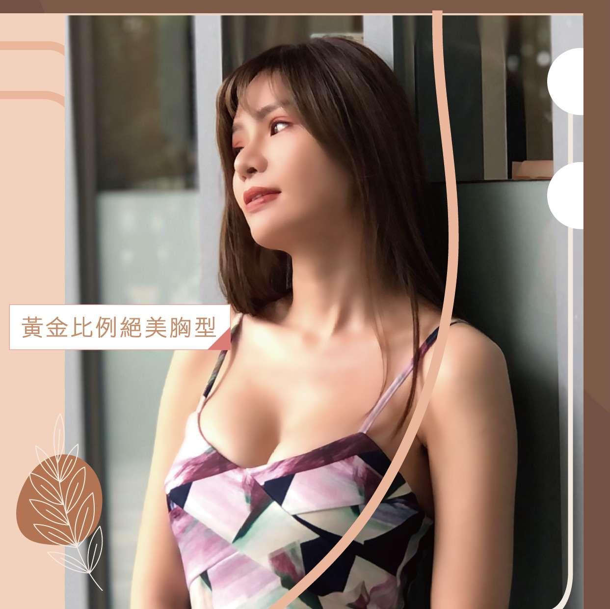 台南隆乳成功案例分享